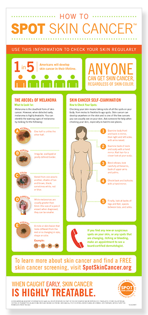 how-to-spot-skin-cancer-infographic-thumbnail
